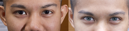 olive green - Eye Color Change Surgery Before And After